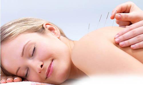 o-que-e-acupuntura-estetica