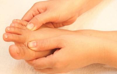 Como fazer a Higienização Micose Interdigital (entre os dedos)