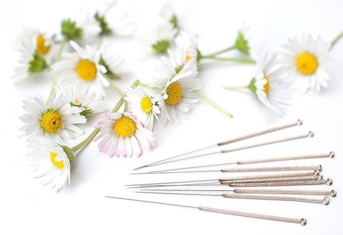 como-acupuntura-ajuda-combater-rinite