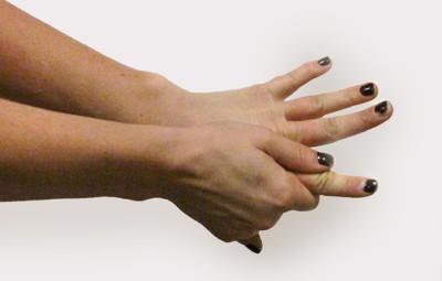 cuidados-da-manicure-de-lesoes-por-esforcos-repetitidos