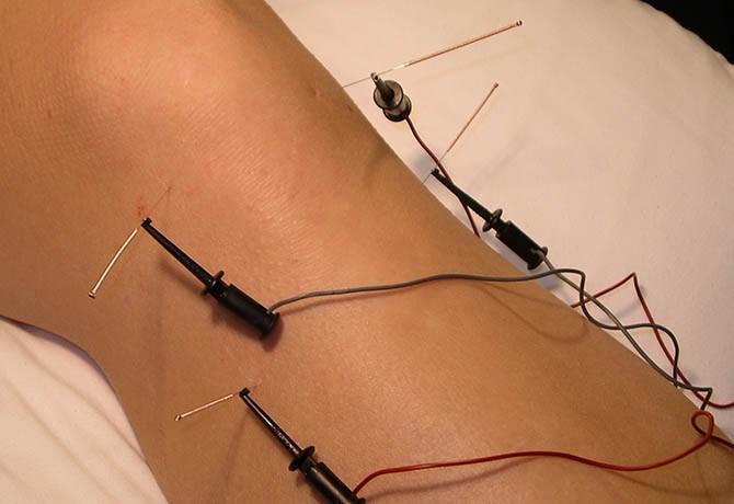 Eletroacupuntura : Estética e Terapêutica