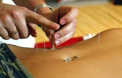 acupuntura-celulite-obesidade-gordura-localizada