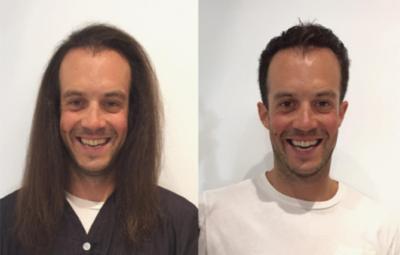 homem antes e depois cabelo